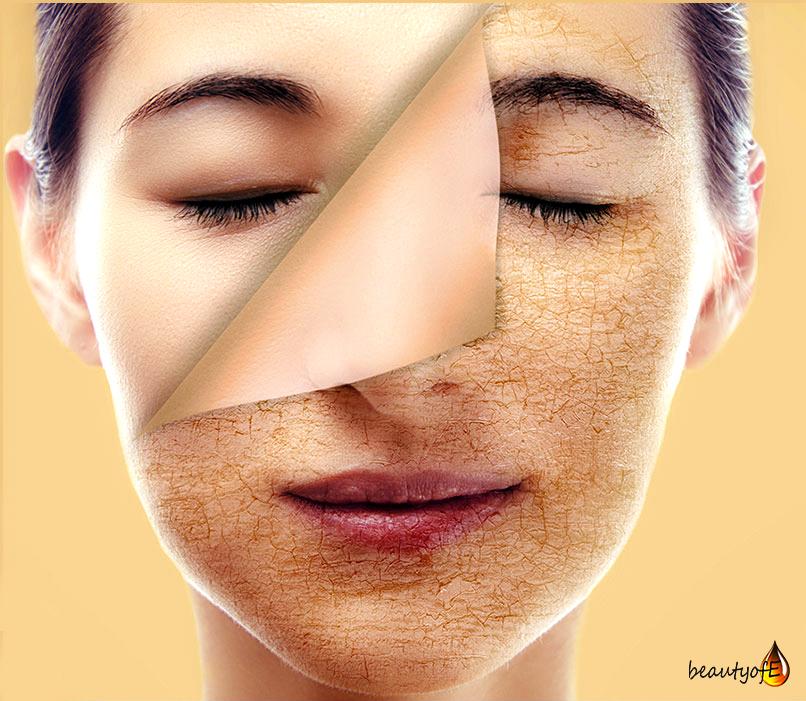 Vitamin E Oil Face Care Benefits