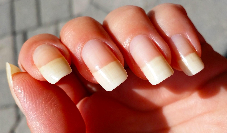 Vitamin E Oil improves nail growth