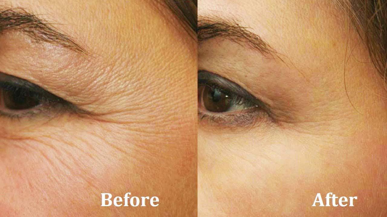 Vitamin E Oil under Eye wrinkles treatment